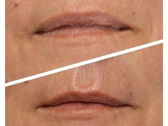 Aumento labios - 790151