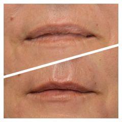 Aumento de labios - Clínica De Medicina Estética Córdoba