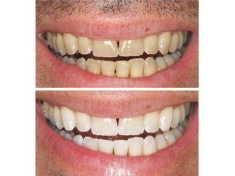 Blanqueamiento dental - 488974