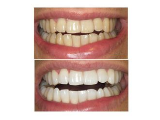 Blanqueamiento dental - 488975