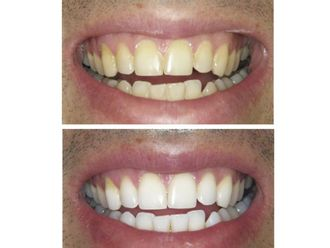 Blanqueamiento dental - 488979