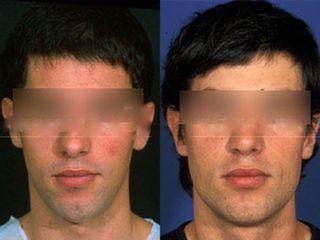 Antes y después Implantes faciales