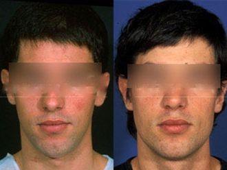 Rellenos faciales-501092