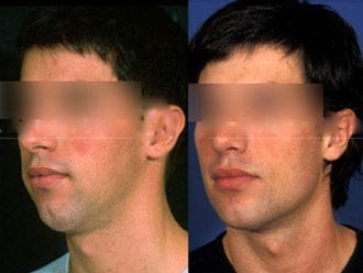 Rellenos faciales-501093