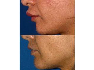 Antes y después Queiloplastia secundaria