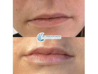 Aumento labios-740441