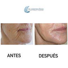 Ácido hialurónico - Dra. Lourdes Gamo Macaya