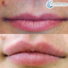 Aumento de labios - Dra. Lourdes Gamo Macaya