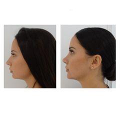 Antes y después Rinoplastia - Clínica Pedralbes