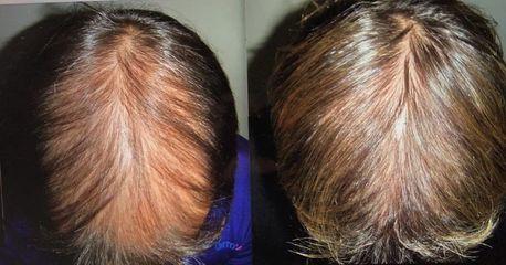 Antes y después Mesoterapia capilar - Clínica Pedralbes