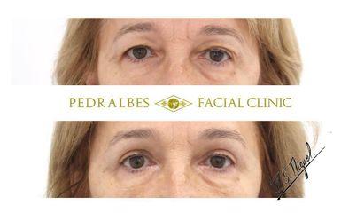 Antes y después Blefaroplastia - Clínica Pedralbes