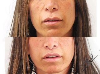 Antes y después Aumento de labios - Clínica Pedralbes