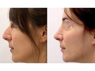 Cirugía estética-775983