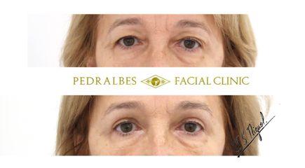 Blefaroplastia - Clínica Pedralbes