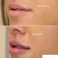 Aumento de labios - Clínica Pedralbes