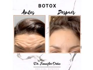 Clínica Pedralbes - Botox