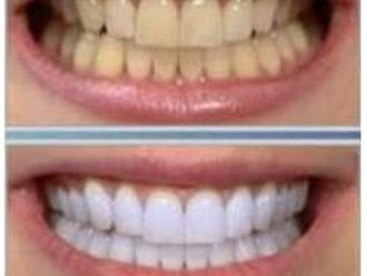 Blanqueamiento dental-171544