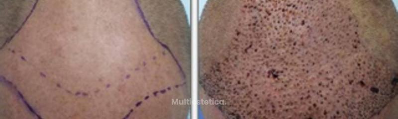 Antes y despues de microtransplante capilar