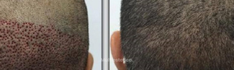 Antes y despues de microimplante capilar