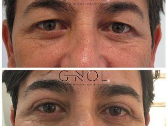 Cirugía estética-630529