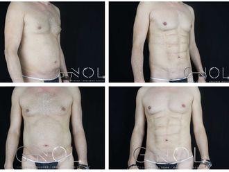 Marcación abdominal - 630536