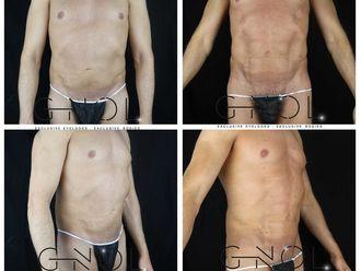 Marcación abdominal - 630624