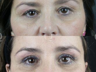 Cirugía estética-662866