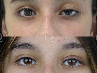 Cirugía estética-662871