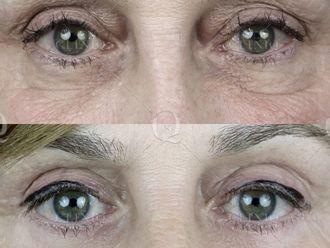 Rejuvenecimiento facial-662889