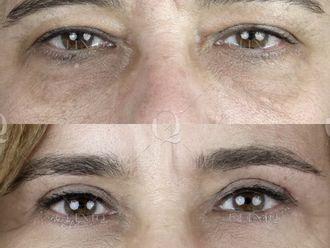 Rejuvenecimiento facial-662890