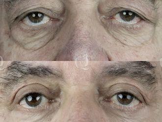Rejuvenecimiento facial-662892