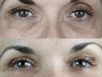 Rejuvenecimiento facial-662893
