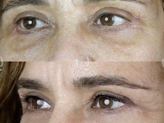 Rejuvenecimiento facial-662894