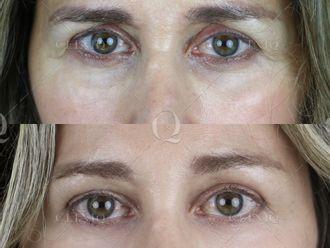 Rejuvenecimiento facial-662896