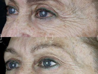Rejuvenecimiento facial-662897
