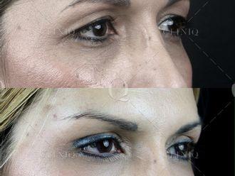 Rejuvenecimiento facial-662899