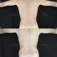 Pre y postoperatorio de una liposucción VASER de cintura