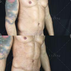 Pre y postoperatorio de una liposucción VASER HD