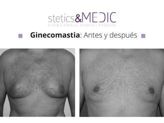 Ginecomastia - 649747