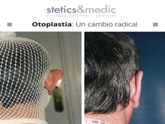 Otoplastia-649751