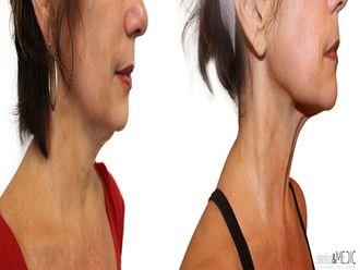 Radiofrecuencia facial - 649752