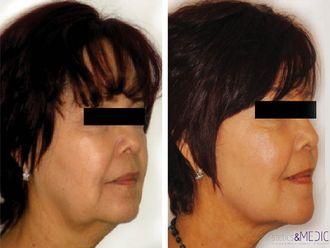 Radiofrecuencia facial-649756