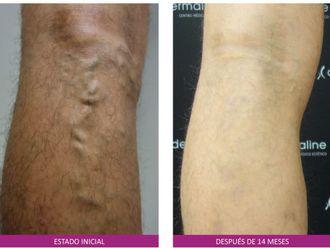 Tratamiento varices-648982