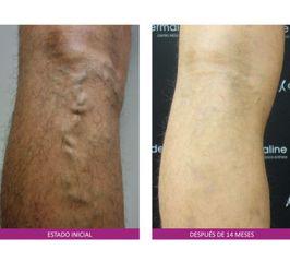 Antes y después Tratamiento varices