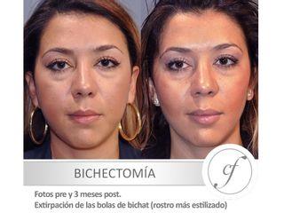 Antes y después Bichectomia