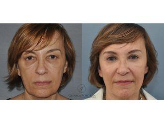 Cirugía estética-607914