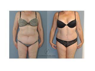 Antes y después Liposucción