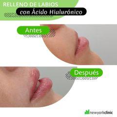 Aumento de labios - New York Clinica