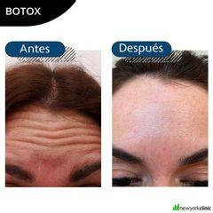 Botox New York Clinic
