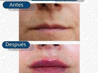 Aumento labios - 794384